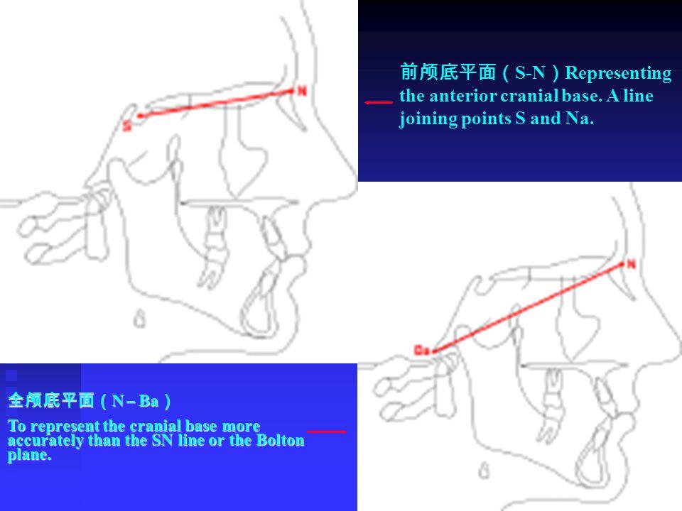 前颅底平面(S-N)Representing the anterior cranial base