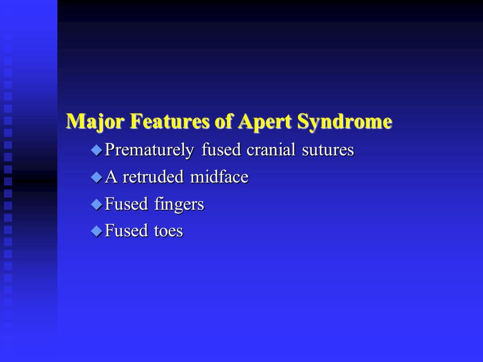 Major Features of Apert Syndrome