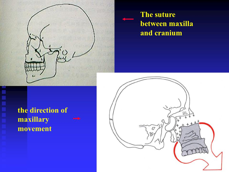 The suture between maxilla and cranium