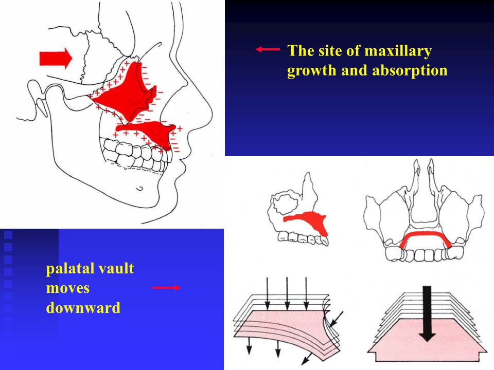 The site of maxillary growth and absorption