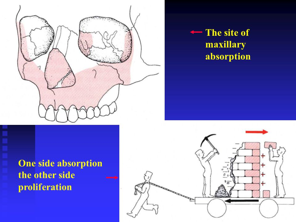 The site of maxillary absorption
