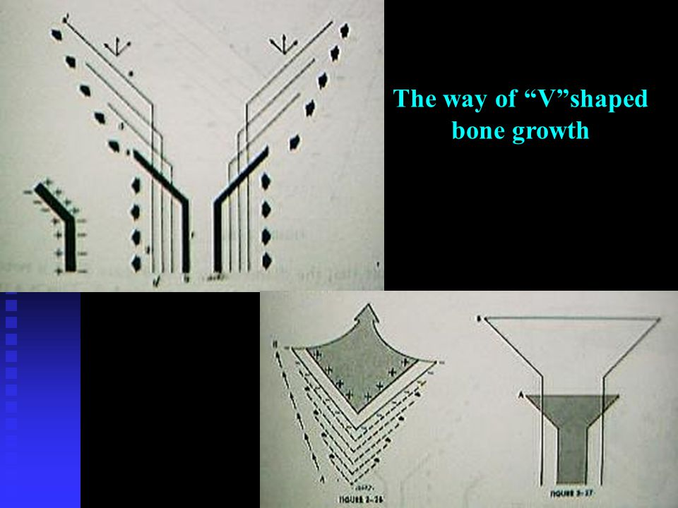 The way of V shaped bone growth