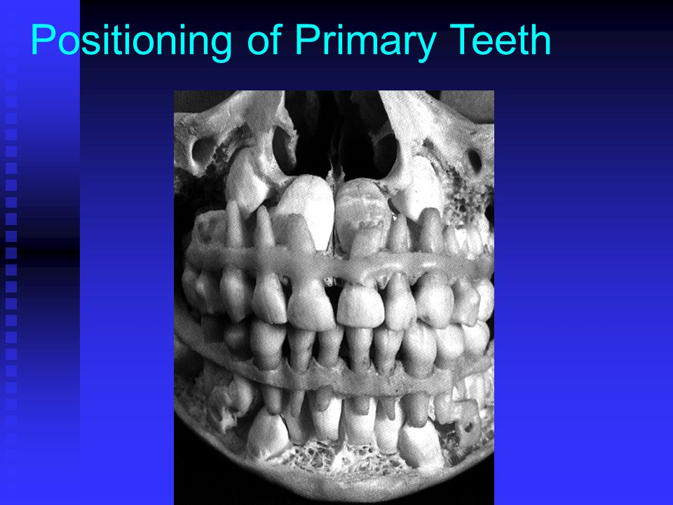 Positioning of Primary Teeth