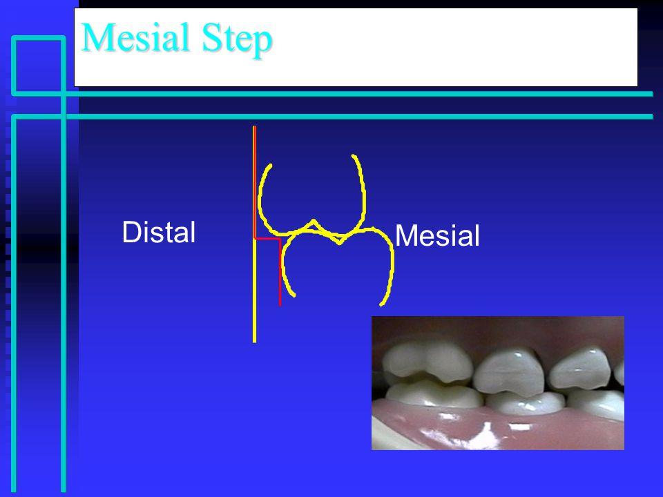Mesial Step Distal Mesial