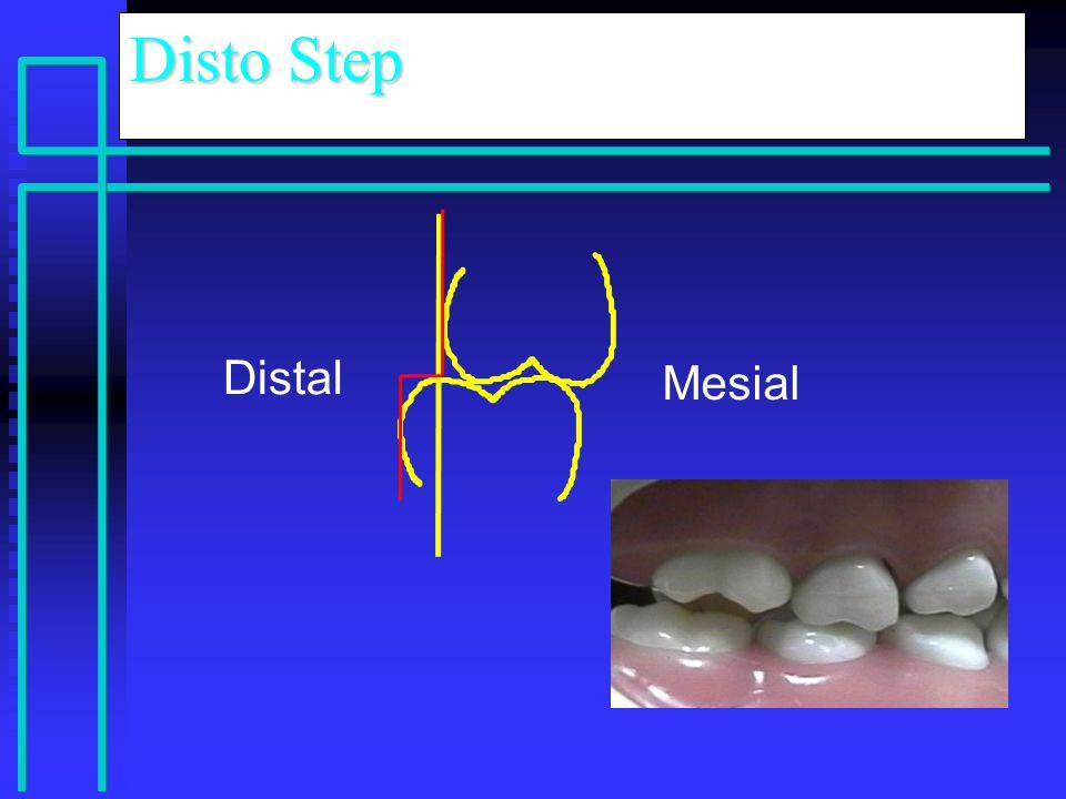 Disto Step Distal Mesial