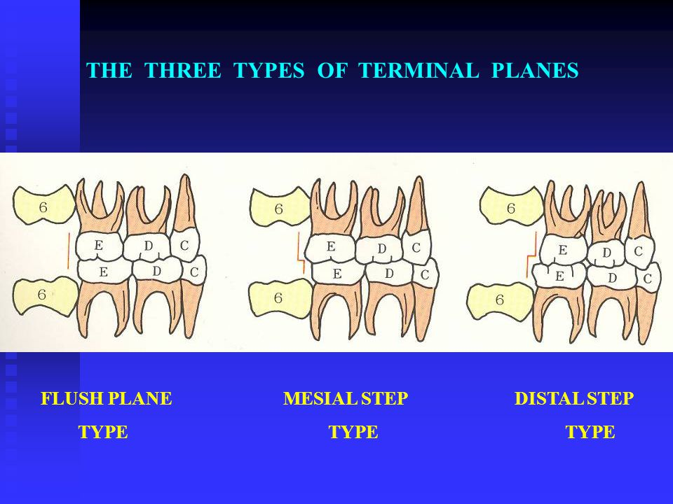 THE THREE TYPES OF TERMINAL PLANES