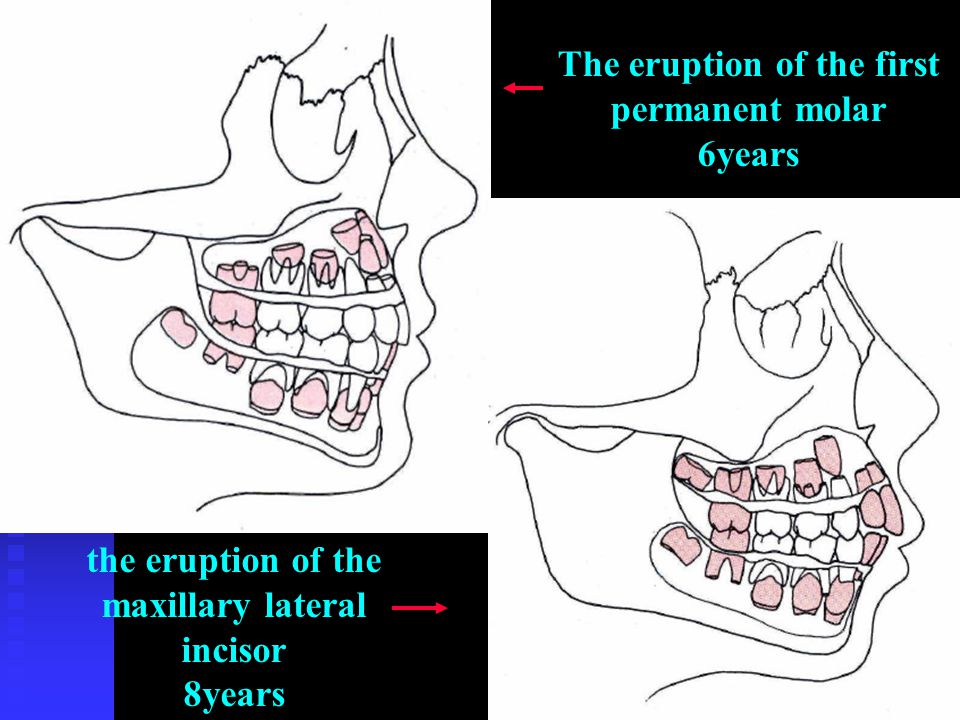 The eruption of the first permanent molar 6years