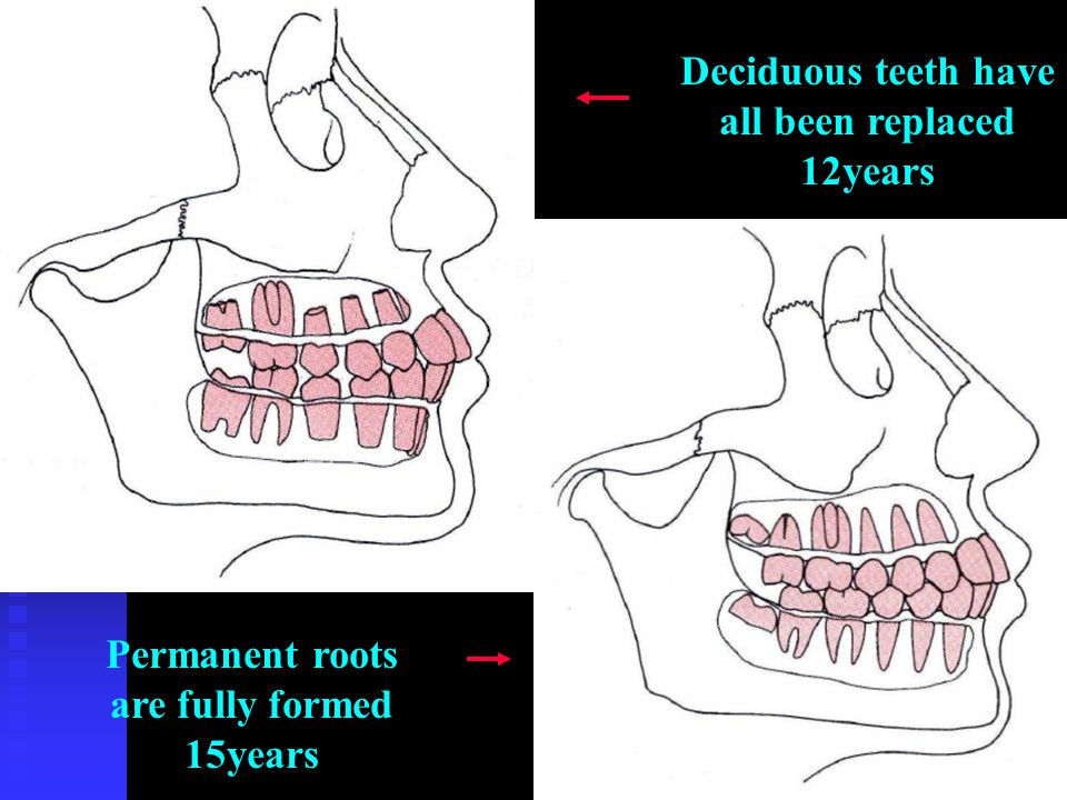Deciduous teeth have all been replaced 12years