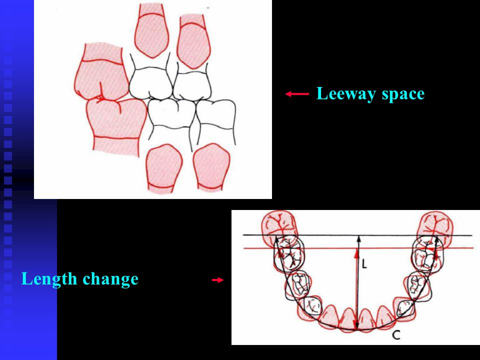 Leeway space Length change