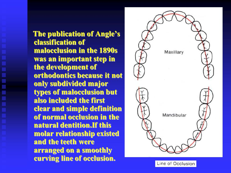 The publication of Angle's classification of malocclusion in the 1890s was an important step in the development of orthodontics because it not only subdivided major types of malocclusion but also included the first clear and simple definition of normal occlusion in the natural dentition.If this molar relationship existed and the teeth were arranged on a smoothly curving line of occlusion.