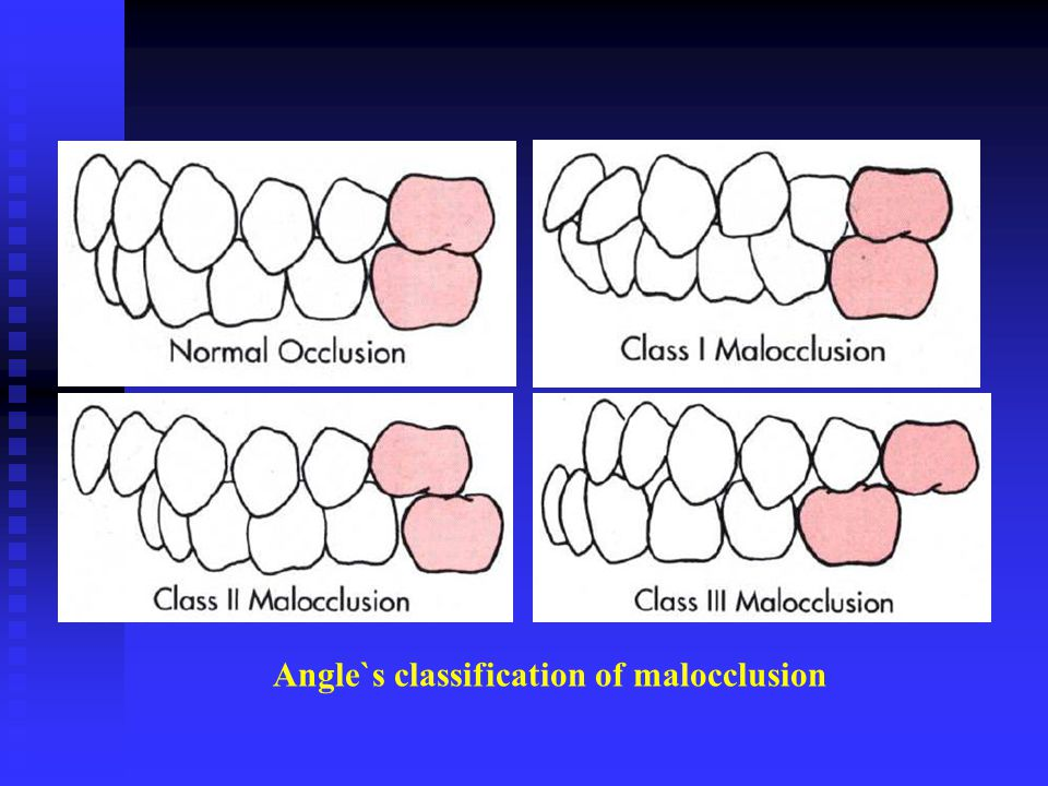 Angle`s classification of malocclusion