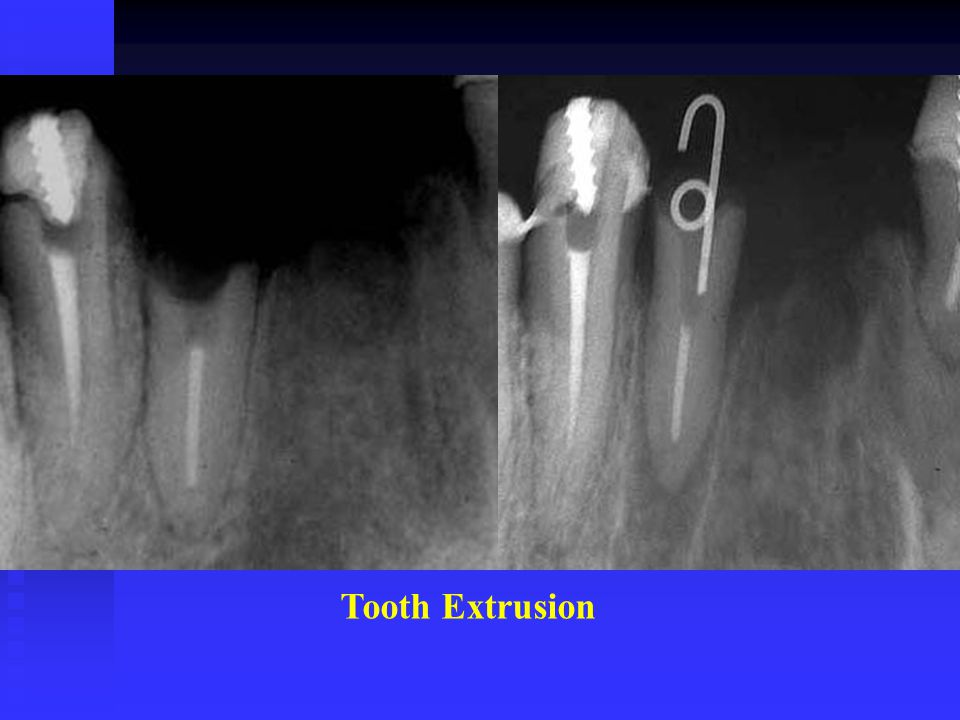 Tooth Extrusion