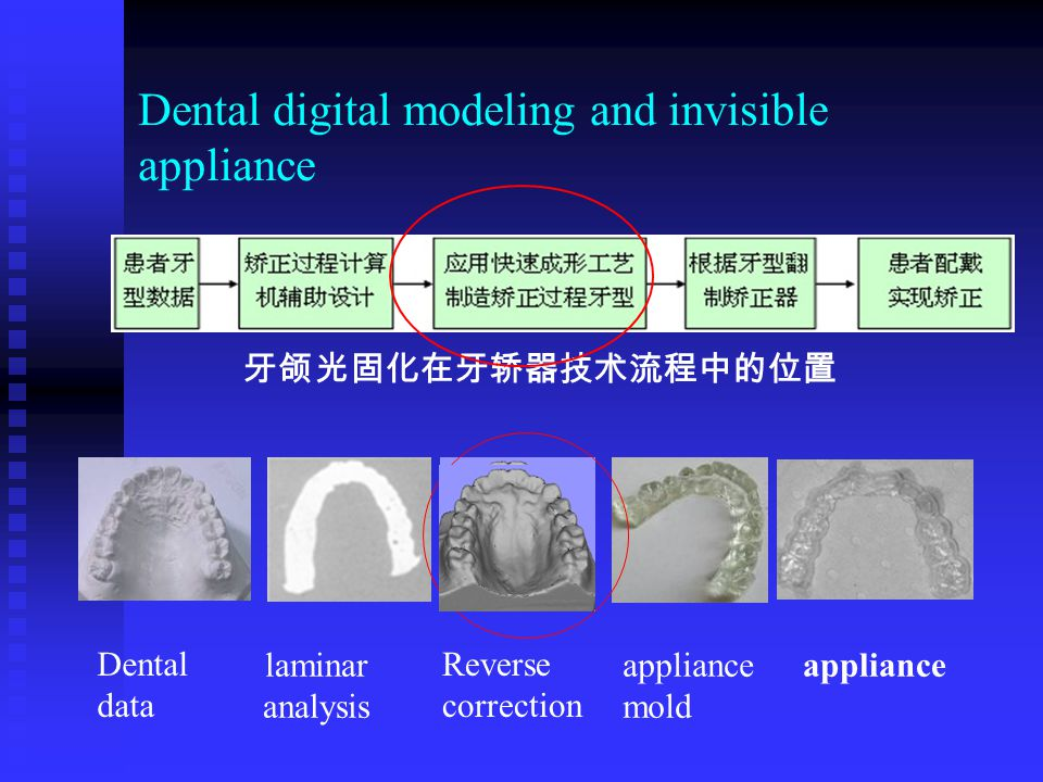 Dental digital modeling and invisible appliance