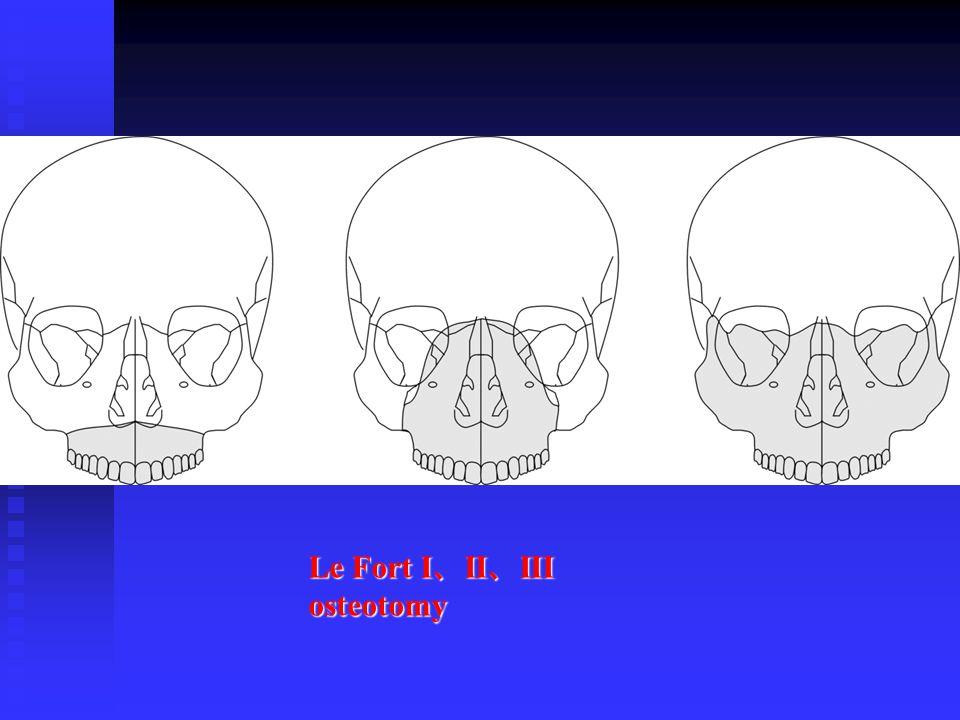 Le Fort I、II、III osteotomy