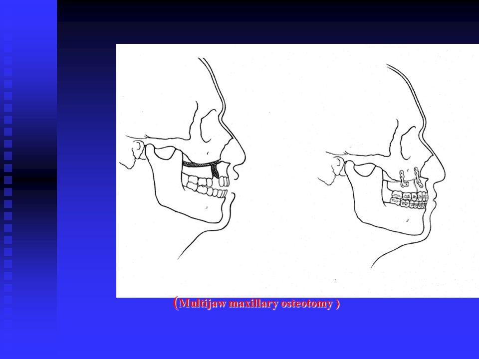 (Multijaw maxillary osteotomy )