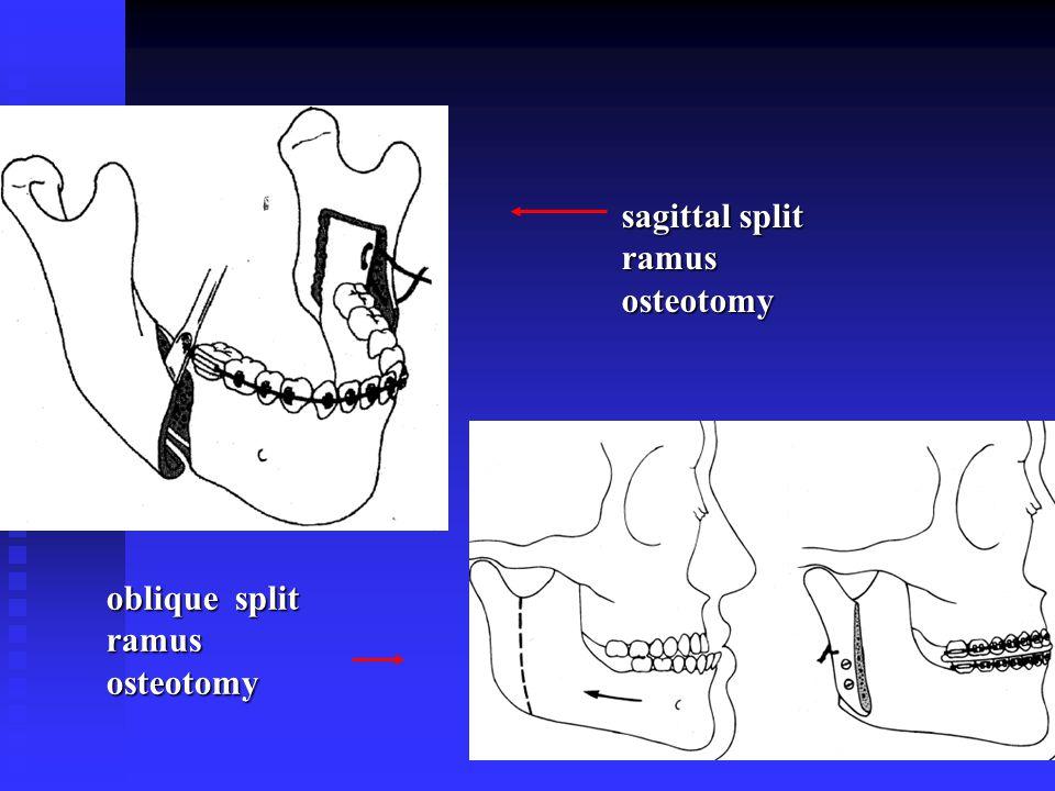 sagittal split ramus osteotomy