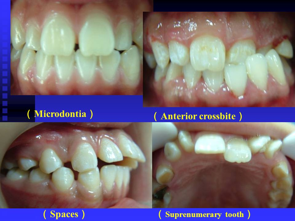 (Microdontia) (Anterior crossbite) (Spaces) (Suprenumerary tooth)