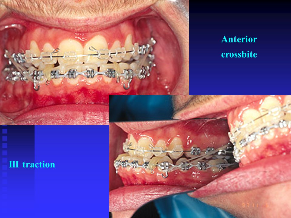 Anterior crossbite III traction