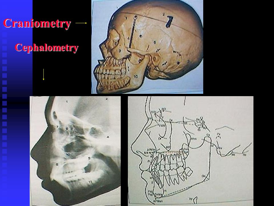 Craniometry Cephalometry