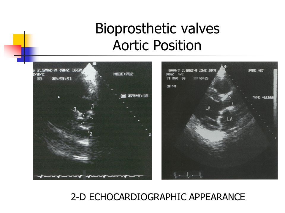 Bioprosthetic valves Aortic Position