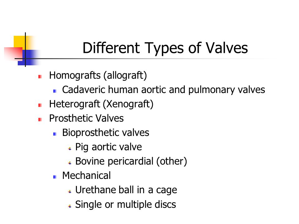 Different Types of Valves