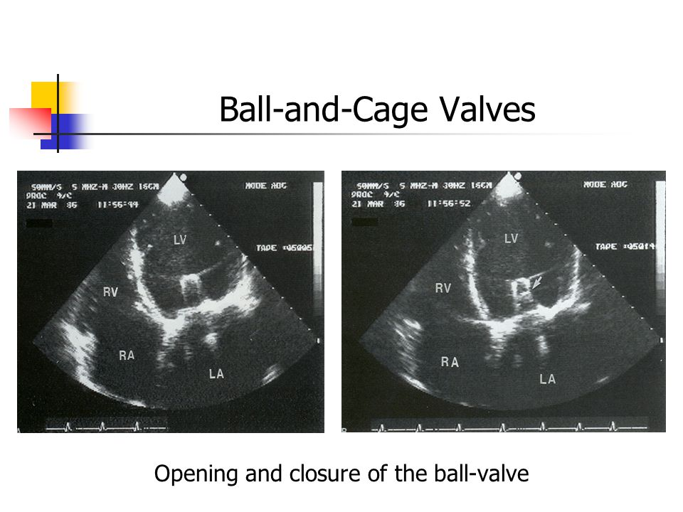 Opening and closure of the ball-valve
