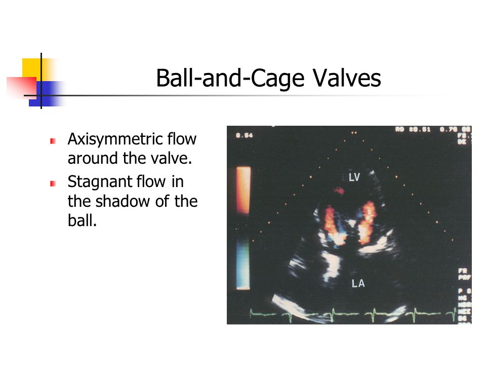 Ball-and-Cage Valves Axisymmetric flow around the valve.