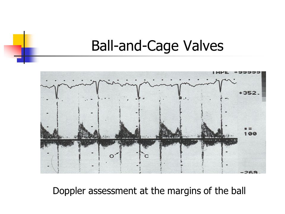 Ball-and-Cage Valves Doppler assessment at the margins of the ball
