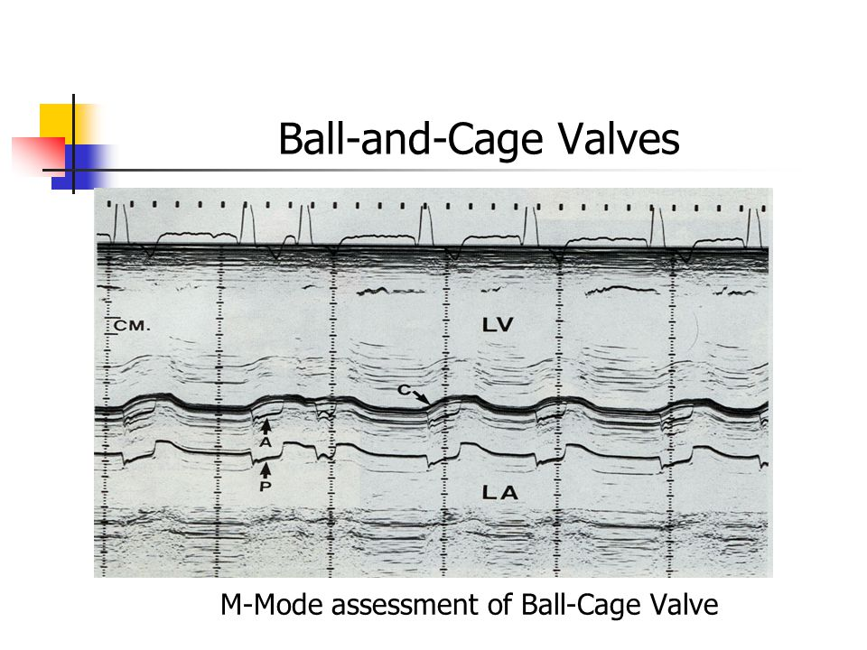 M-Mode assessment of Ball-Cage Valve