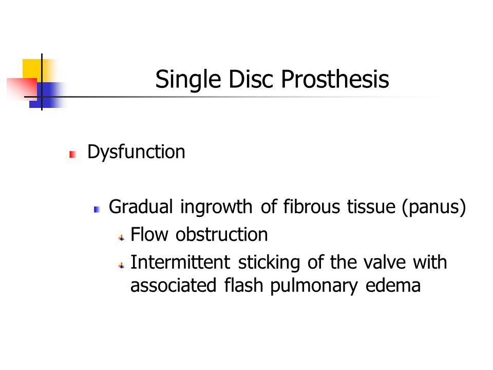 Single Disc Prosthesis