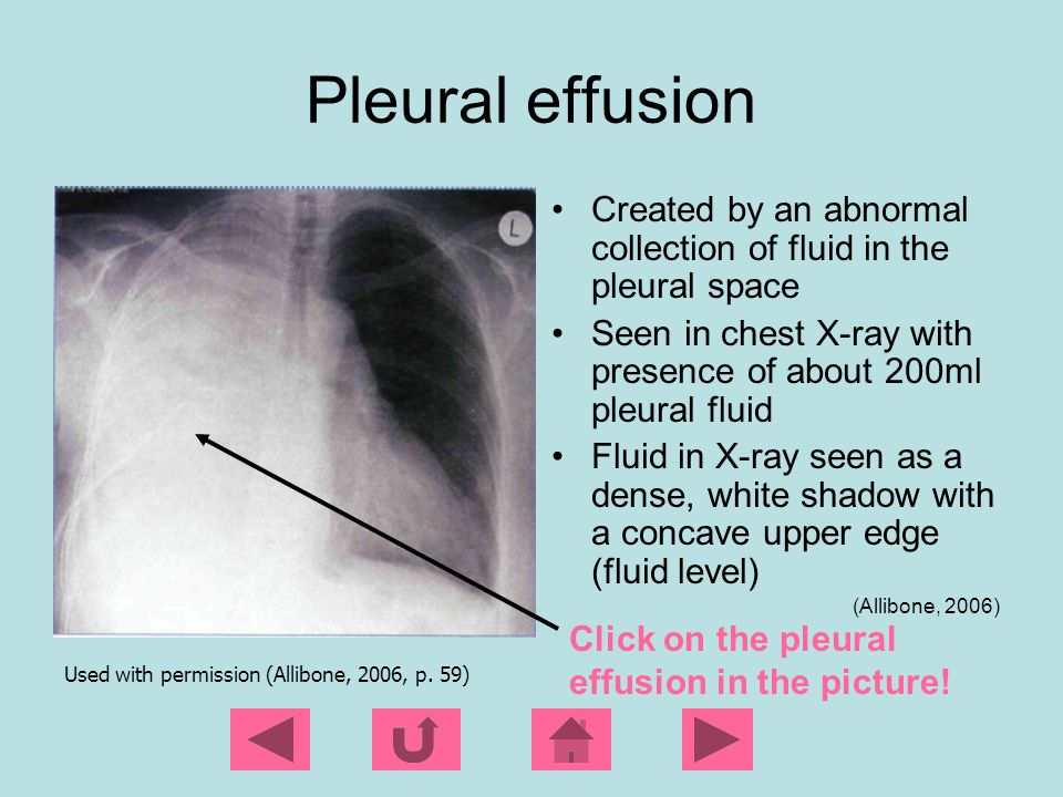 Pleural effusion Created by an abnormal collection of fluid in the pleural space. Seen in chest X-ray with presence of about 200ml pleural fluid.
