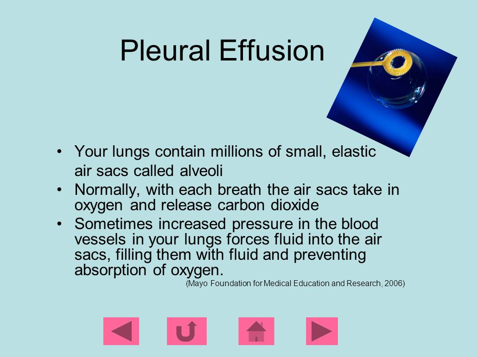 Pleural Effusion Your lungs contain millions of small, elastic