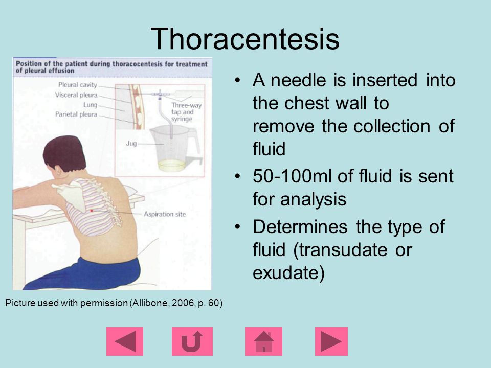 Thoracentesis A needle is inserted into the chest wall to remove the collection of fluid. 50-100ml of fluid is sent for analysis.