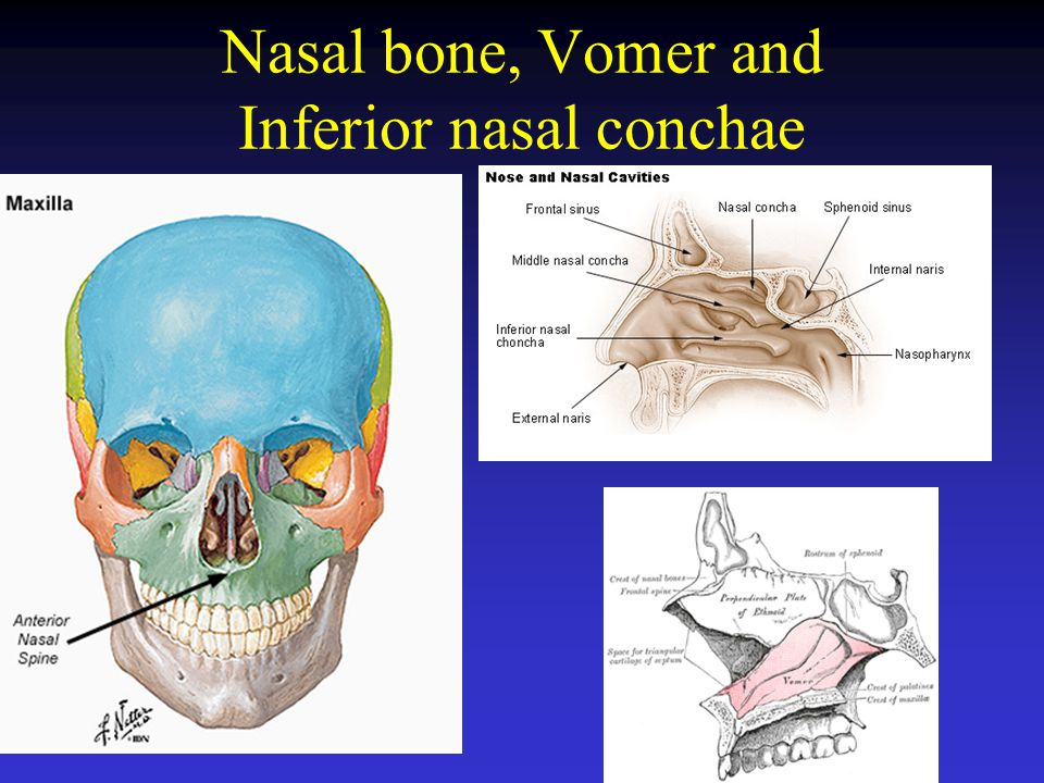 Nasal bone, Vomer and Inferior nasal conchae