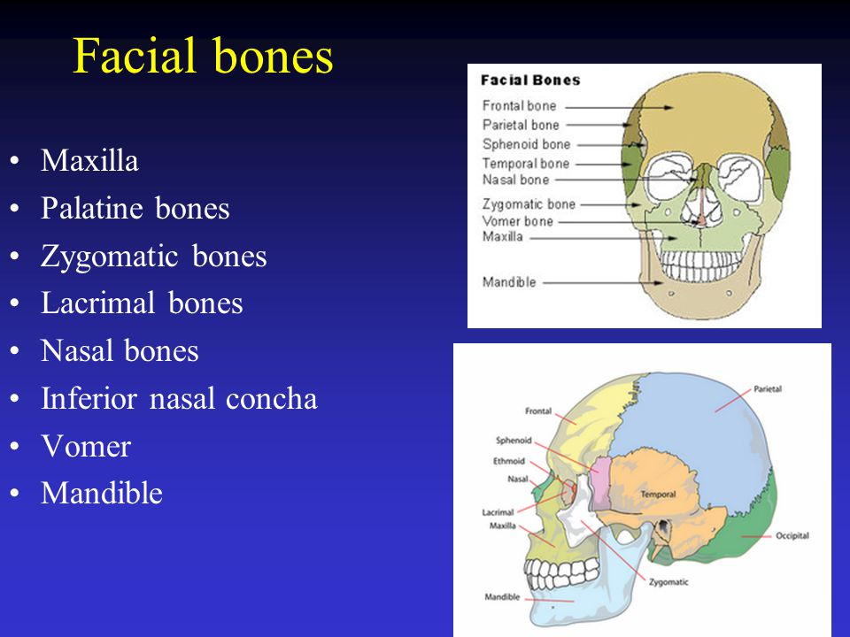 Facial bones Maxilla Palatine bones Zygomatic bones Lacrimal bones