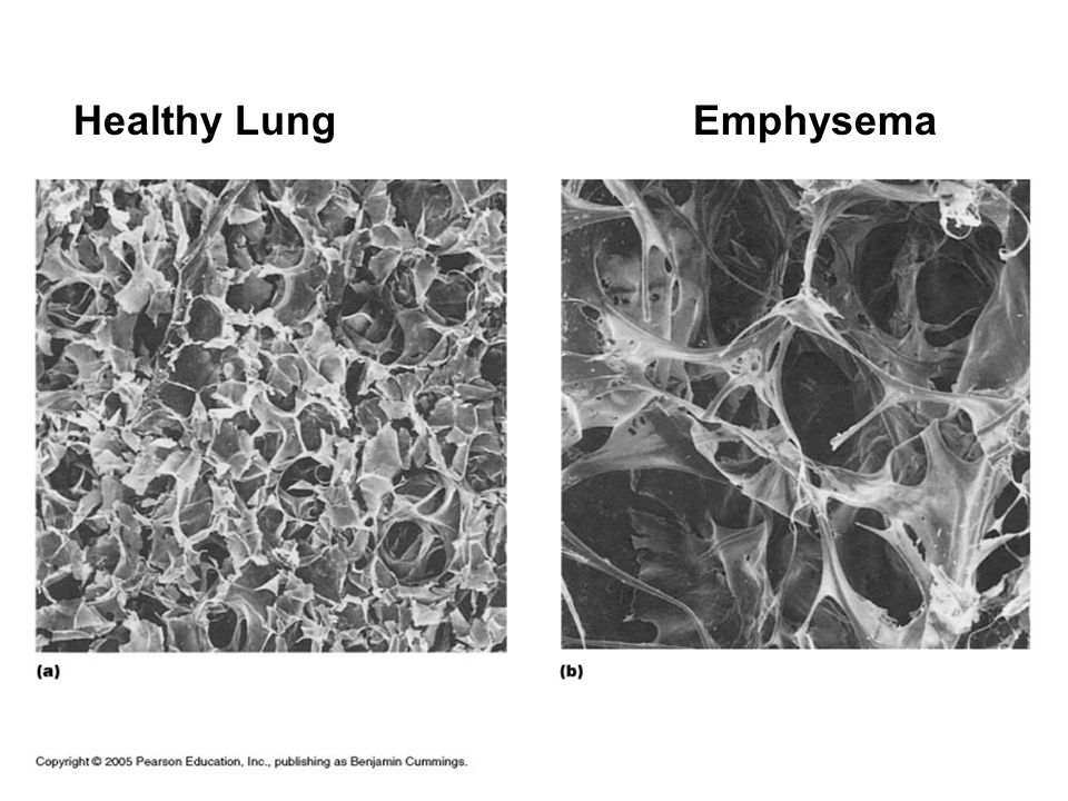 Healthy Lung Emphysema