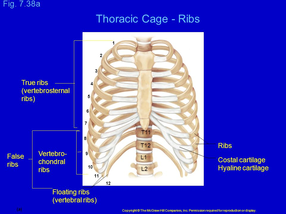 Thoracic Cage - Ribs Fig. 7.38a True ribs (vertebrosternal ribs) Ribs