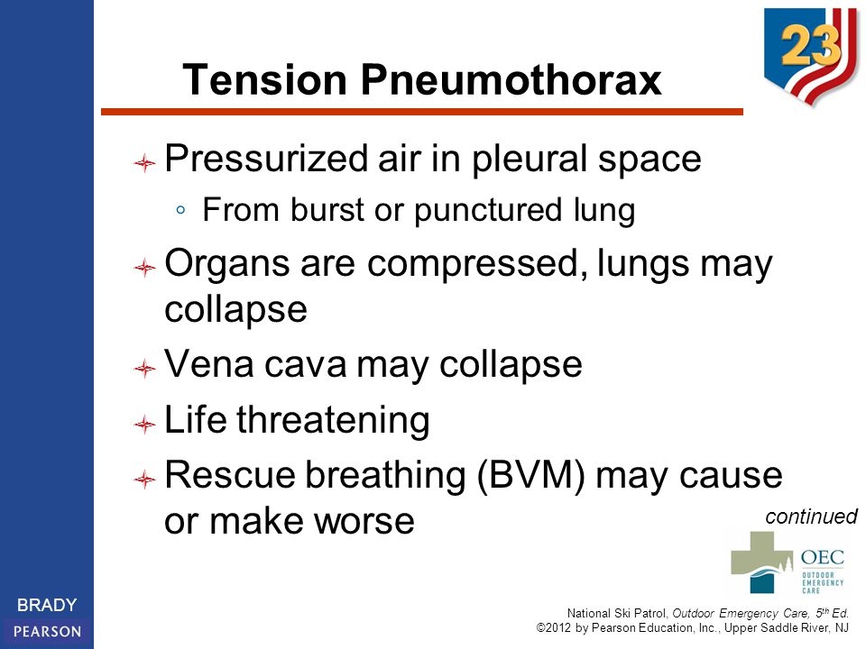 Tension Pneumothorax Pressurized air in pleural space