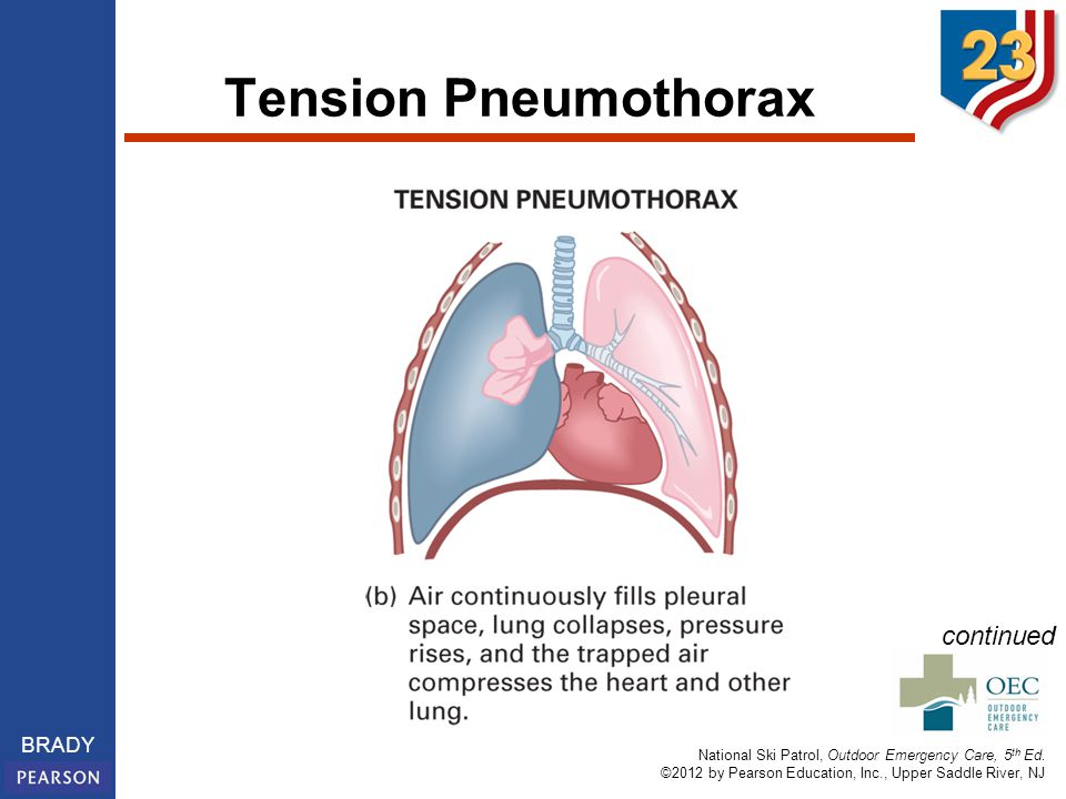 Tension Pneumothorax continued