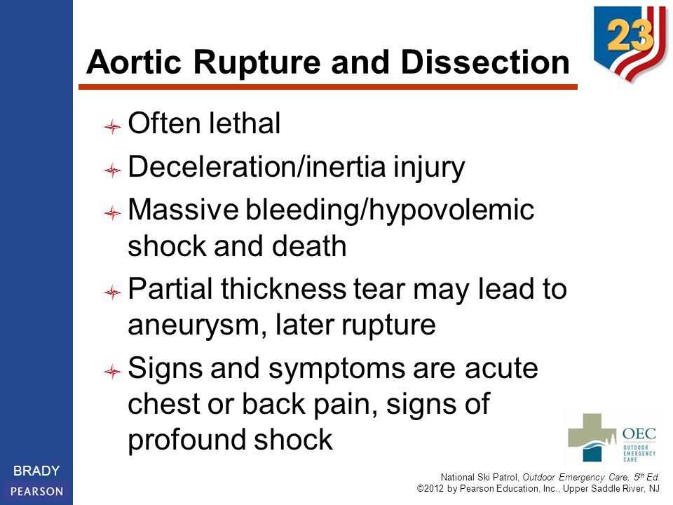 Aortic Rupture and Dissection