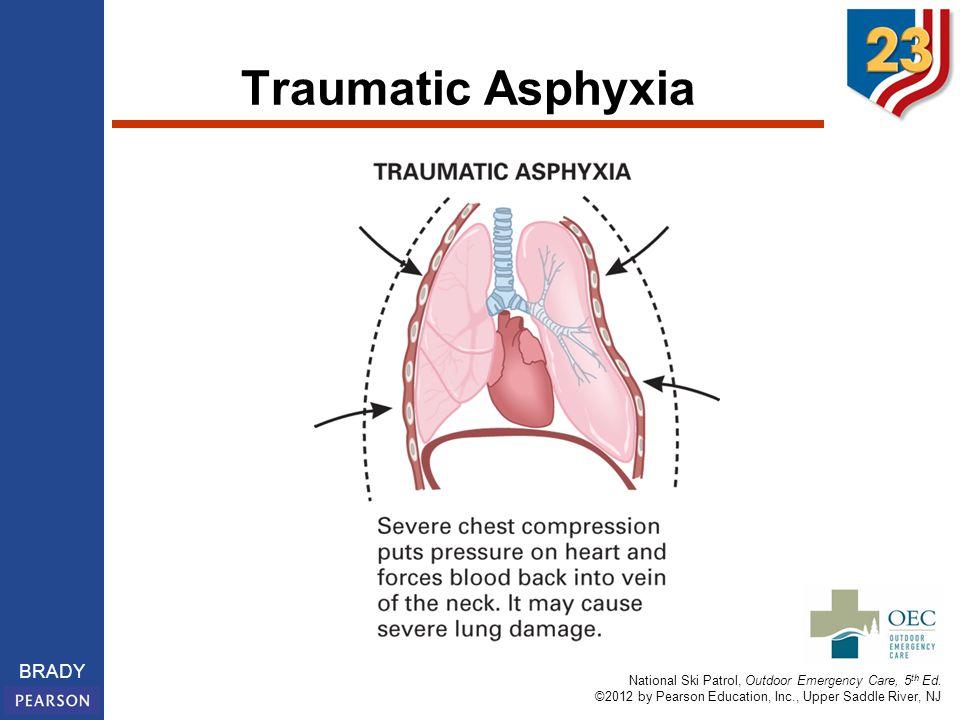 Traumatic Asphyxia Traumatic asphyxia.