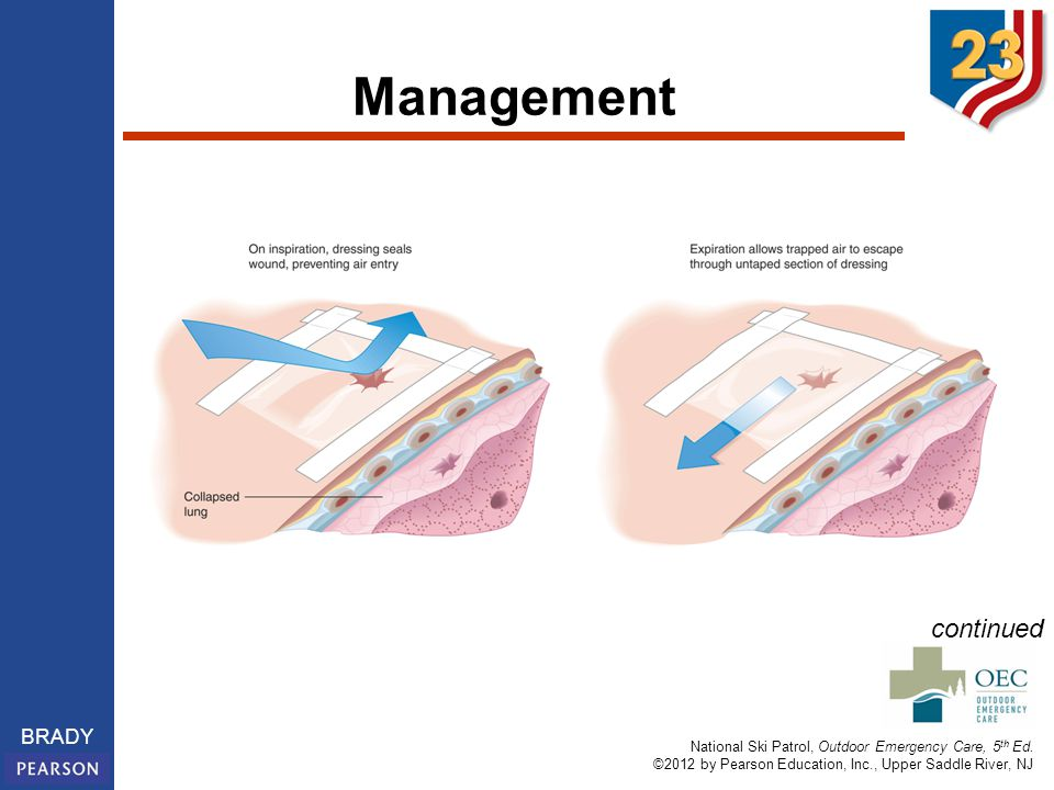 Management Taping an occlusive dressing on three sides of a sucking chest wound helps prevent a tension pneumothorax.