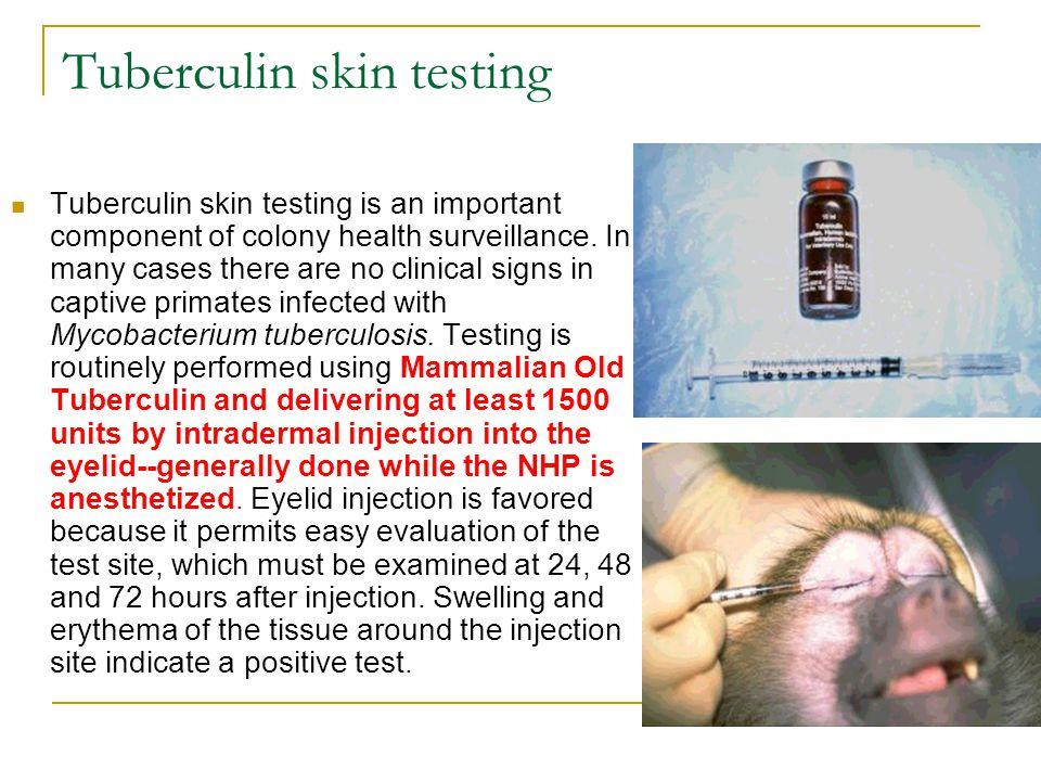 Tuberculin skin testing
