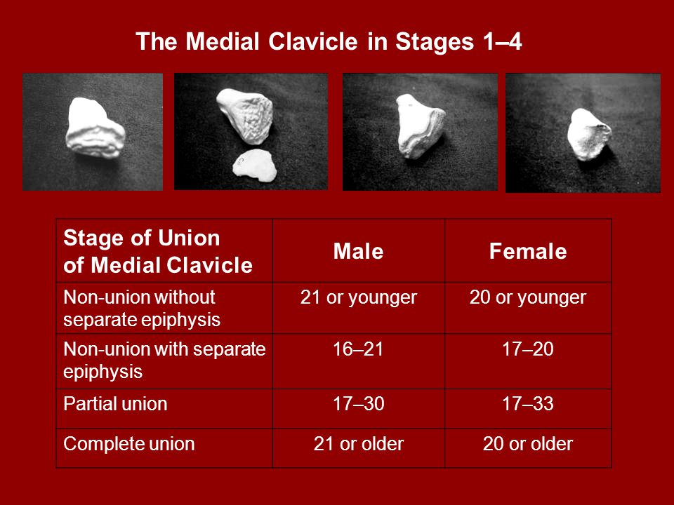 The Medial Clavicle in Stages 1–4