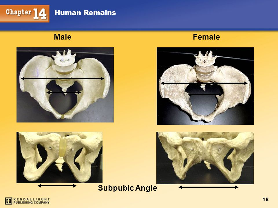 Chapter 12 Human Remains Male Female Subpubic Angle 18 Kendall/Hunt