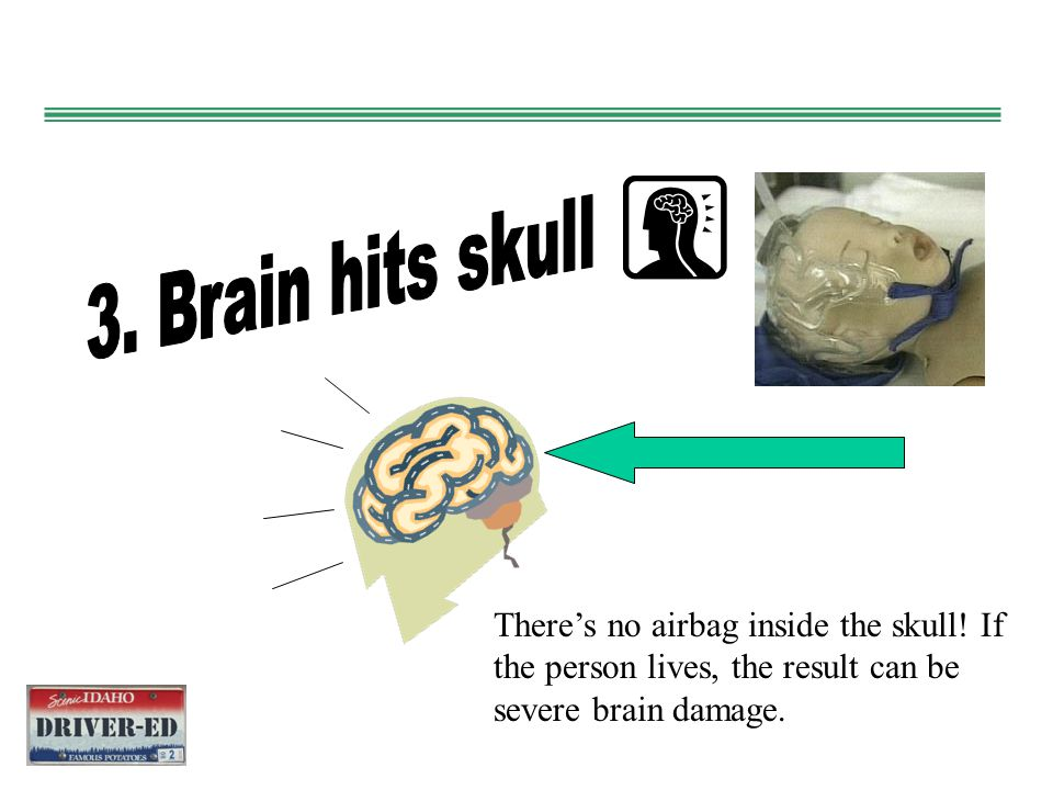 3. Brain hits skull There's no airbag inside the skull.