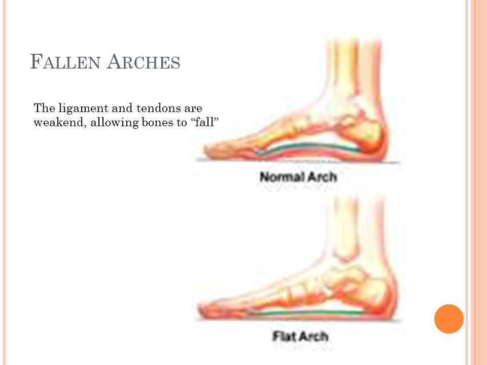Fallen Arches The ligament and tendons are weakend, allowing bones to fall