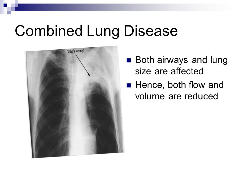 Combined Lung Disease Both airways and lung size are affected