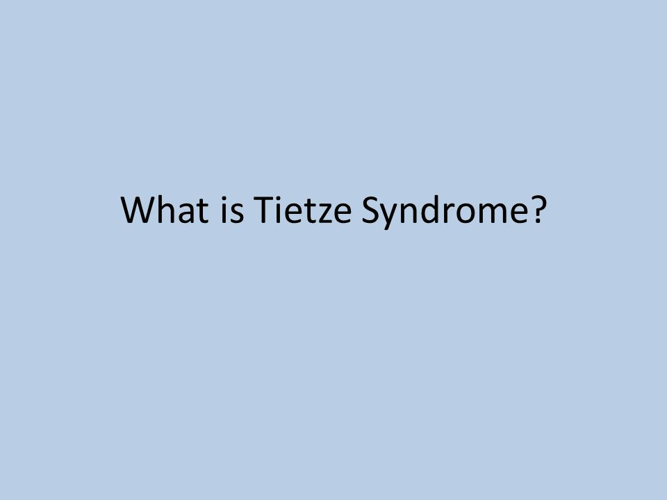 What is Tietze Syndrome
