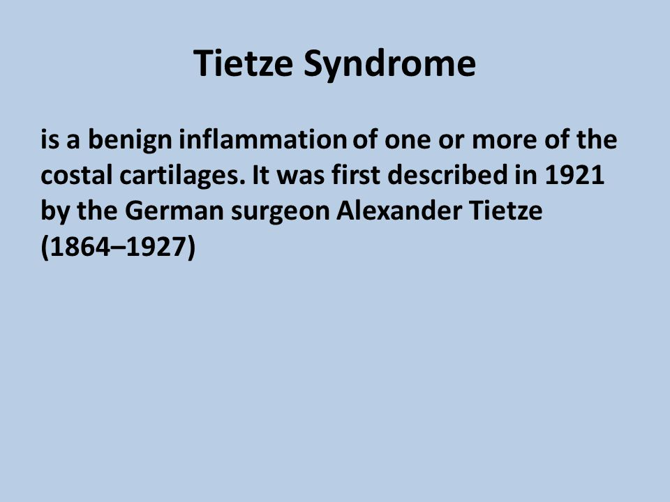 Tietze Syndrome